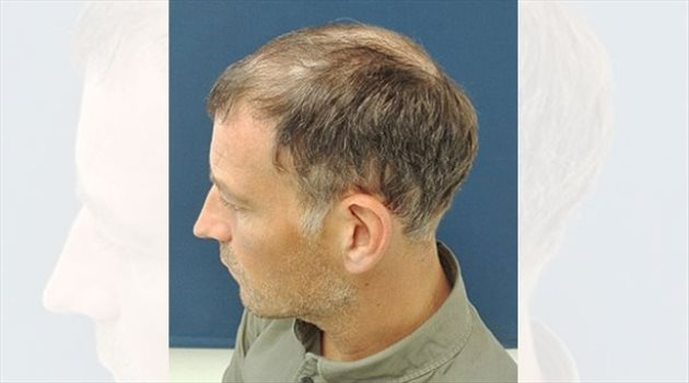 كلاتنبرج يزرع شعر